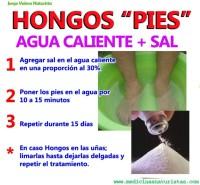 remedio para los hongos de los pies