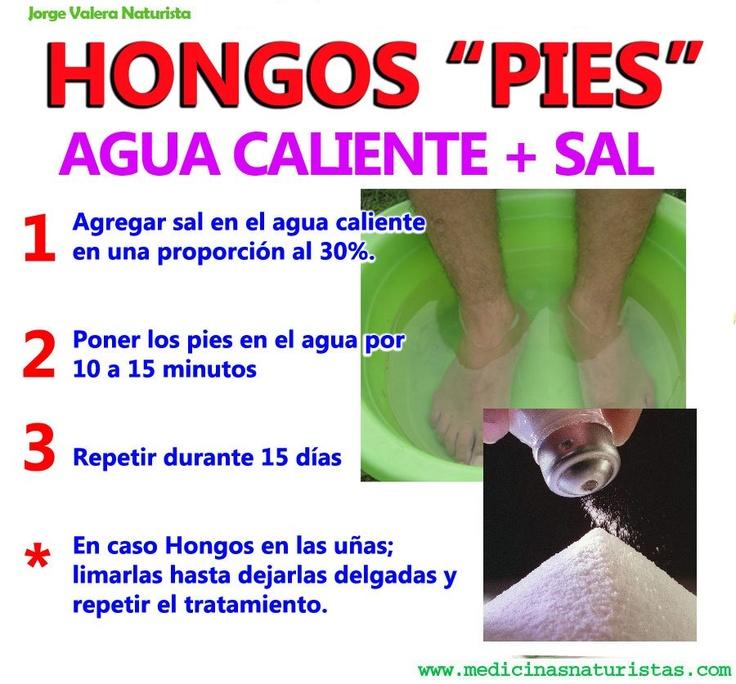Remedio natural para los hongos de los pies infograf as - Como quitar hongos de la pared ...