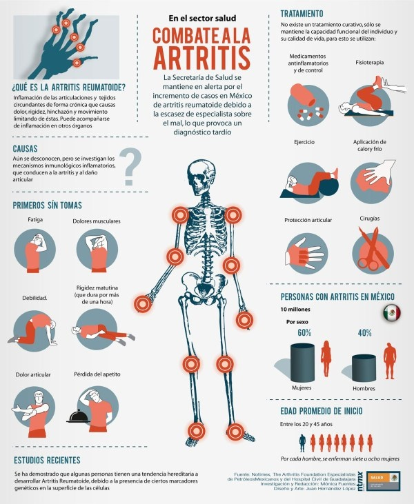 infografía artritis