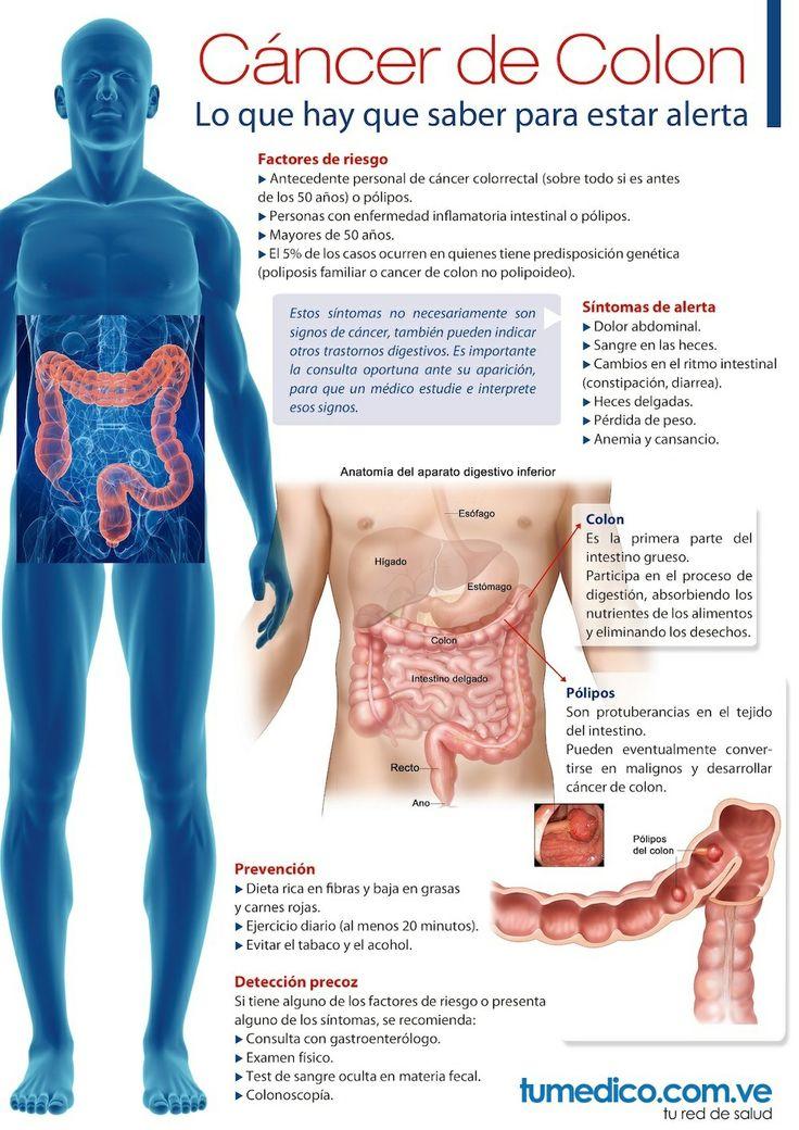 infografía cancer de colon