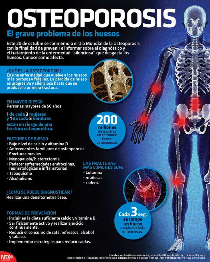infografía osteoporosis