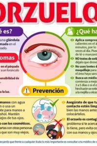 como curar un orzuelo en el ojo