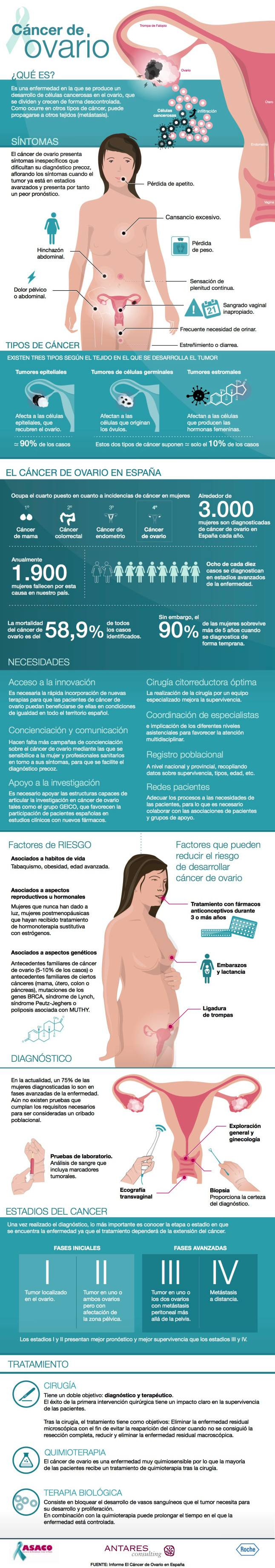 infografía cáncer de ovarios
