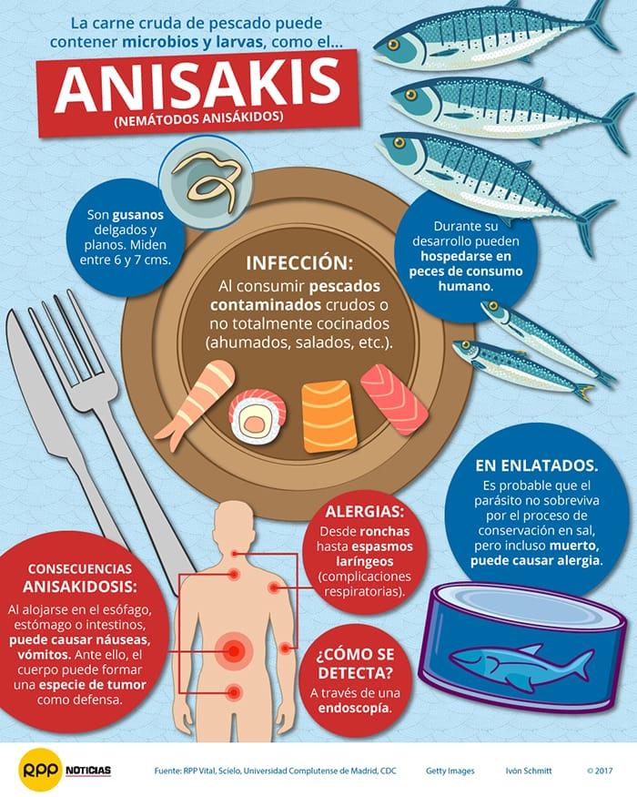 síntomas del anisakis