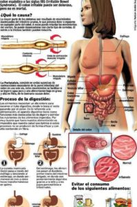 infografía sobre el colon irritable